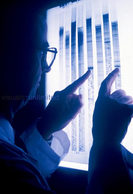DNA Fingerprinting.