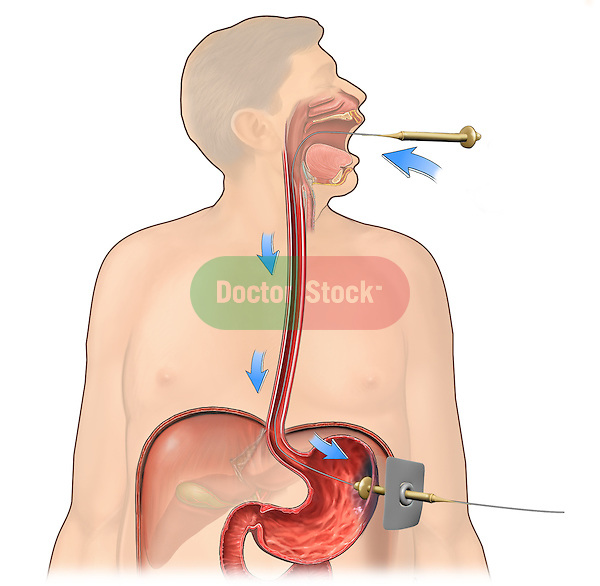 This stock medical image reveals the Gauderer-Ponsky technique showing the PEG tube being pulled via guidewire from the patient's mouth down the esophagus and out the stomach and abdominal wall where it is secured..