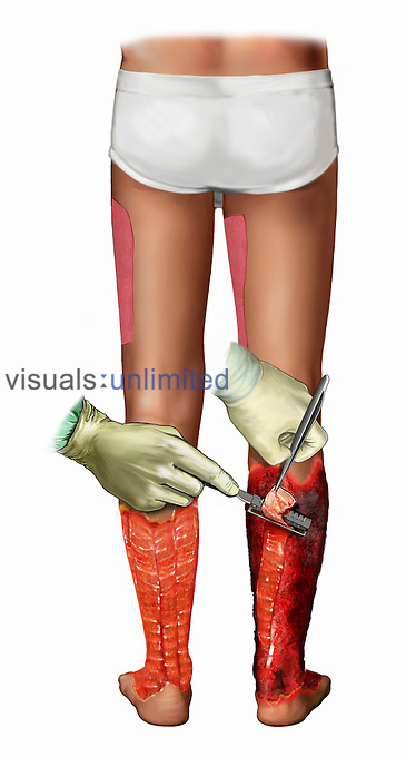 Biomedical illustration of the repair of burnt tissue of the legs. The lower region of the leg is debrided to prepare for skin grafts harvested from the thighs.