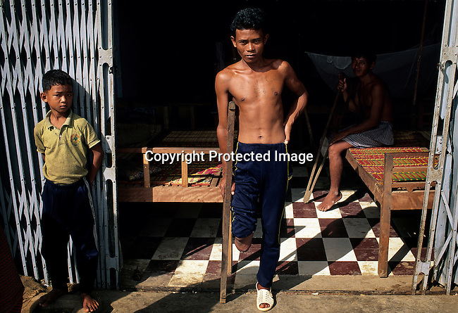 An unidentified man recovering in a hospital after losing a leg to mine on July 15, 1992 in a rural village outside Phnom Penh, Cambodia. Every day people lose limbs in Cambodia as mines still are found in the fields around the country. From 1975-1979 about 1,7 million people were killed (about 21 percent of the population), in one of the worst human tragedies during recent history. It was led by Pol Pot, who used extremist ideology to repress and murder on a massive scale. (Photo by: Per-Anders Pettersson)