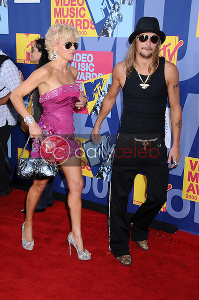 Kid Rock<br />