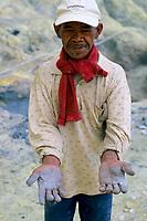 Miner's hands, Kawah Ijen volcano, Java, Indonesia, 2002