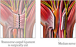 Carpal Tunnel Syndrome Release Surgery. This exhibit features side by side comparative views of the wrist revealing the incision of the transverse carpal ligament and the surgical  release of compression to the underlying median nerve.