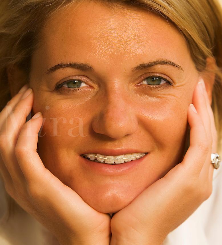 Young woman wears dental  braces on her teeth. Model released.