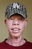Fadhiri, one of 12 members of the Albino Revolution Cultural Troupe (ARCT), created in 2000 by artist Tito David Ntanga. They organise musical and theatre performances at conferences, meetings and cultural events. Having already campaigned around issues like HIV/AIDS and civil rights, they are now campaigning against the stigmatisation and killing of albinos. Discrimination against albinos is a serious problem throughout sub-Saharan Africa, but recently in Tanzania albinos have been killed and mutilated, victims of a growing criminal trade in albino body parts fuelled by superstition and greed. Limbs, skin, hair, genitals and blood are believed by witch doctors to bring good luck, and are sold to clients for large sums of money, carrying with them the promise of instant wealth.