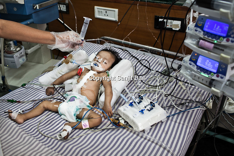 A nurse feeds through a tube to 6 month old Baby Kaushik sleeps at the Intensive Therapy Unit of the Pediatric Section of the Narayana Hrudayalaya in Bangalore, Karnataka, India. Dr. Shetty conducted an open heart surgery on the child a day before. Photo: Sanjit Das/Panos