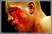 Bloodied but still Champion... despite a bad eye cut Glasgow's Craig Docherty outpointed Commonwealth title challenger Abdul Malik Jabir at Bellahouston Leisure Centre, Glasgow ... Pic Donald MacLeod 1.11.03
