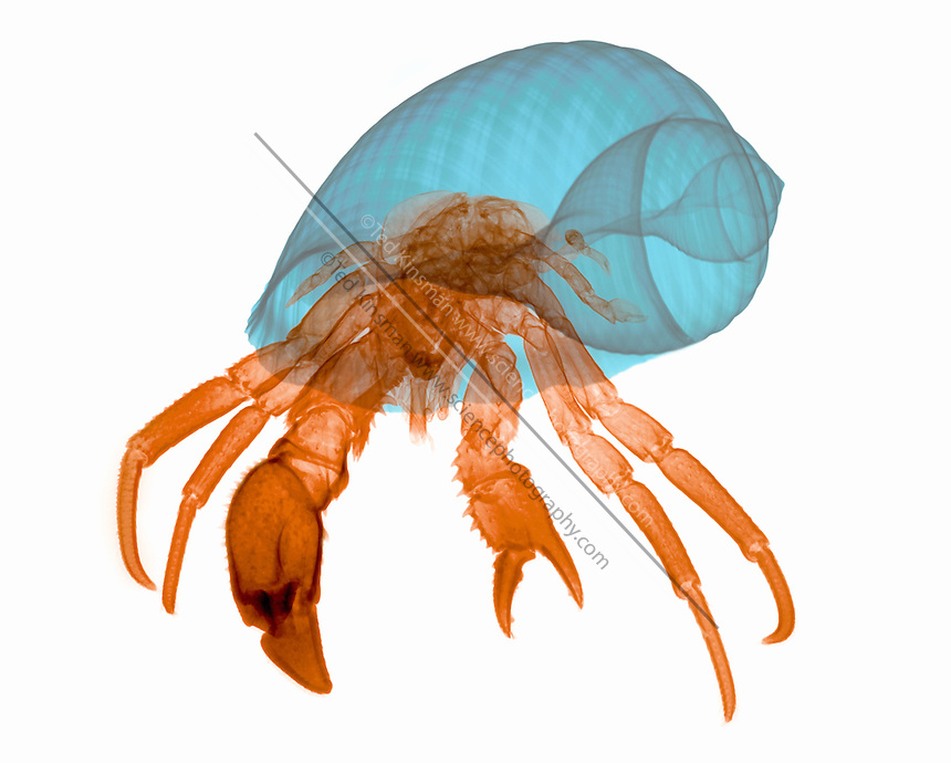 X-ray of a Hermit Crab
