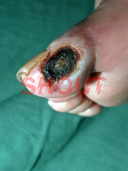 Ischaemic ulcer of toe - diabetic patient. Ischaemia is a decreased lack of oxygenated blood to a body organ or part. This image may only be used to portray the subject in a positive manner..©shoutpictures.com..john@shoutpictures.com