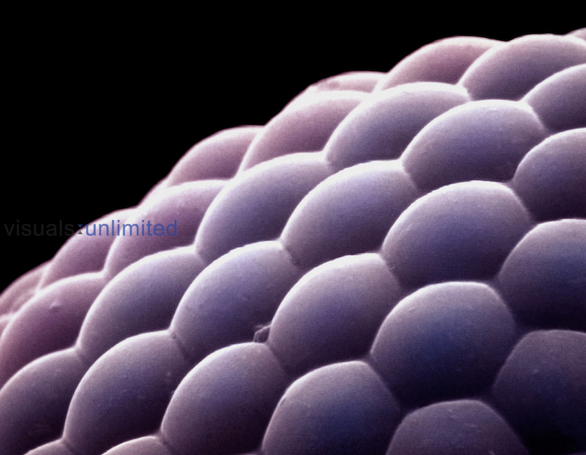 Compound eye from an insect.  Arthropod compound eyes are made up of numerous repeating units called ommatidia, each of which functions as a separate visual receptor. SEM X300