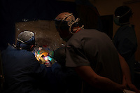 San Francisco, California, January 6, 2011 - Dr. Alexander Papanastassiou (center standing), a visiting doctor from the University Texas Health Science Center San Antonio observes University of California San Francisco neurosurgeon Dr. Philip Starr  (left) and clinical fellow Dr. Ellen Air as they drill two holes into the skull of patient Linda Sharp during an iMRI surgery at UCSF Medical Center. The MRI machine photographs the patient during the surgery allowing the doctors operating to view the procedure as well as support doctors and technicians to monitor from an outside room.  The iMRI procedure uses Deep brain stimulation (DBS), which has been used for over a decade to treat movement disorders such as Parkinson's disease, essential tremor, and dystonia. DBS uses a pulse generator implanted in the chest, similar to a pacemaker, to deliver pulses to specific regions of the brain via a permanently implanted electrode. In the U.S., DBS is normally done while the patient is awake, because the surgeon needs to induce the symptoms (like the involuntary movements of Parkinson's) to know if he's in the right place, and if the patient is unconscious, the symptoms can't be induced. Many patients find it hard to tolerate. Their head is clamped in a frame, they're aware of their surroundings, and the surgeon is deliberately producing tremors and twitches while they lie there...Interventional MRI (or iMRI) allows surgeons to implant these electrodes while the patient is unconscious taking advantage of MR imaging in real time by performing procedures inside the scanner itself.