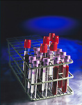 blood sample tubes in rack