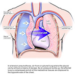 This medical illustration pictures the effects of a ruptured lung with resulting tension pneumothorax compressing mediastinal tissues and opposite lung within the thorax (thoracic cavity). In this emergency situation, it is imperative that a hole be made immediately in the thoracic cavity on the side of the ruptured lung in order to restore respiratory function.