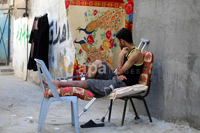 A Palestinian youth Mahmoud Darwish, 17, who was wounded in the leg during clashes with Israeli security forces at the Gaza-Israeli border, sits outside his home, in al-Nusairat refugee camp in the central Gaza Strip on May 24, 2018. Photo by Atia Darwish