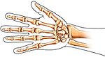 The Bones of the Hand: Palmar View. This medical illustration features an outline of the hand including a full color depiction of the bones of the hand. The ulna, radius, carpal bones, metacarpals, and phalanges are all represented from the palmar view.
