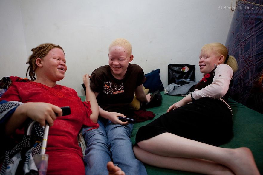 10 june 2010 - Dar Es Salaam, Tanzania - Samuel Mluges daughters: Prisca and Priscila, twin, 17 yrs and Lilina Adelina (25 yrs). Samuel Herman Mluge (51yrs) an albino rights activist in Dar Es Salaam, Tanzania and his wife Teresa January (46 yrs) have five children, all with albinism. Albinism is a recessive gene but when two carriers of the gene have a child it has a one in four chance of getting albinism. Tanzania is believed to have Africa' s largest population of albinos, a genetic condition caused by a lack of melanin in the skin, eyes and hair and has an incidence seven times higher than elsewhere in the world. Over the last three years people with albinism have been threatened by an alarming increase in the criminal trade of Albino body parts.At least 53 albinos have been killed since 2007, some as young as six months old.Many more have been attacked with machetes and their limbs stolen while they are still alive. Witch doctors tell their clients that the body parts will bring them luck in love, life and business. The belief that albino body parts have magical powers has driven thousands of Africa's albinos into hiding, fearful of losing their lives and limbs to unscrupulous dealers who can make up to US$75,000 selling a complete dismembered set. The killings have now spread to neighbouring countries, like Kenya, Uganda and Burundi and an international market for albino body parts has been rumoured to reach as far as West Africa. Photo credit: Benedicte Desrus