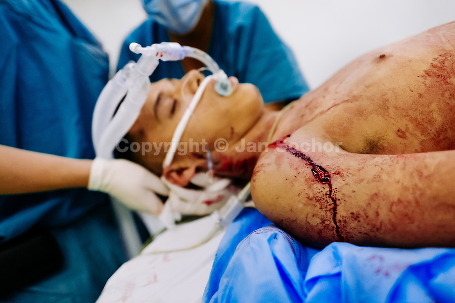 An anesthesiologist prepares a young gang member, with three gunshot wounds, for a surgery in the operating room of a public hospital in San Salvador, El Salvador, 14 February 2015.