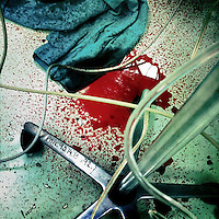 A pool of blood seen on the floor of a surgery room, during a life-saving operation of a young boy, in a state hospital in San Salvador, El Salvador, 15 December 2013.