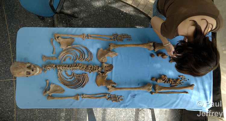 Bones are examined at the Forensic Anthropology Foundation of Guatemala. The Foundation exhumes victims of the country's bloody civil war and compiles evidence about their killings, in an effort to help communities rebury their dead in appropriate fashion and begin a process of demanding justice for those responsible for the violence.