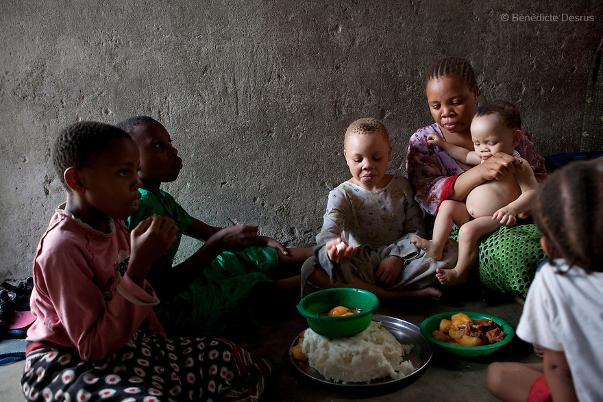 June 30, 2010 - Dar es Salaam, Tanzania - Fatima eats lunch with her children and their friends. Fatima Husseni and her husband Hamisi Husseni are not Albino, although four of their five children are albinos. Albinism is a recessive gene but when two carriers of the gene have a child it has a one in four chance of getting albinism. Tanzania is believed to have Africa' s largest population of albinos, a genetic condition caused by a lack of melanin in the skin, eyes and hair and has an incidence seven times higher than elsewhere in the world. Over the last three years people with albinism have been threatened by an alarming increase in the criminal trade of Albino body parts. At least 53 albinos have been killed since 2007, some as young as six months old. Many more have been attacked with machetes and their limbs stolen while they are still alive. Witch doctors tell their clients that the body parts will bring them luck in love, life and business. The belief that albino body parts have magical powers has driven thousands of Africa's albinos into hiding, fearful of losing their lives and limbs to unscrupulous dealers who can make up to US$75,000 selling a complete dismembered set. The killings have now spread to neighboring countries, like Kenya, Uganda and Burundi and an international market for albino body parts has been rumored to reach as far as West Africa. Photo credit: Benedicte Desrus