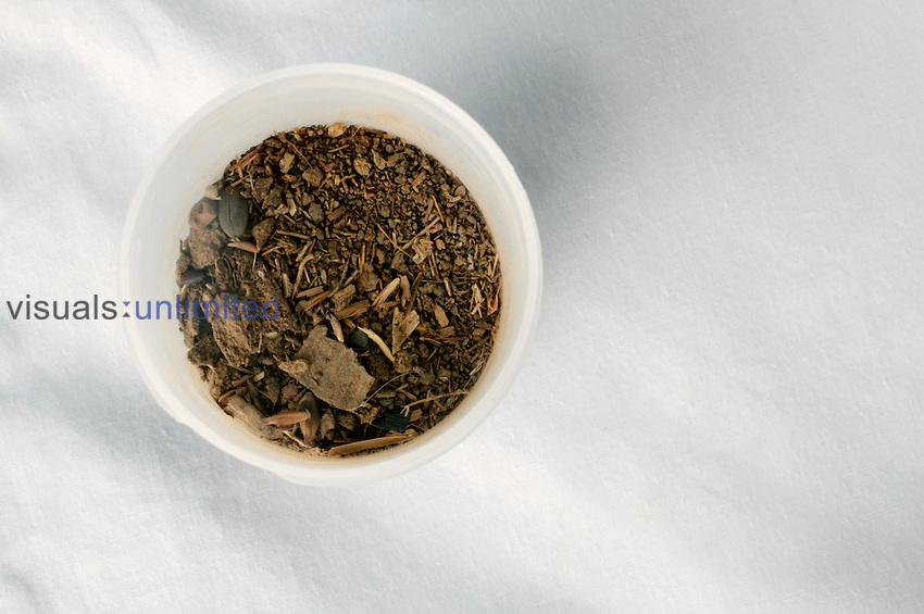 Soil sample taken from an area highy affected by Mycetoma...The sample is taken and examined to determine if the bacteria or fungi are present in multiple numbers and can be tested against sereral antibiotics. Royalty Free