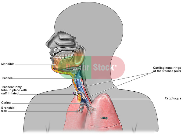 This full color medical exhibit illustrates the placement of a tracheostomy tube. The tube is shown placed just above the carina of the bronchial tree. The trachea is show cut-away for visual clarity.
