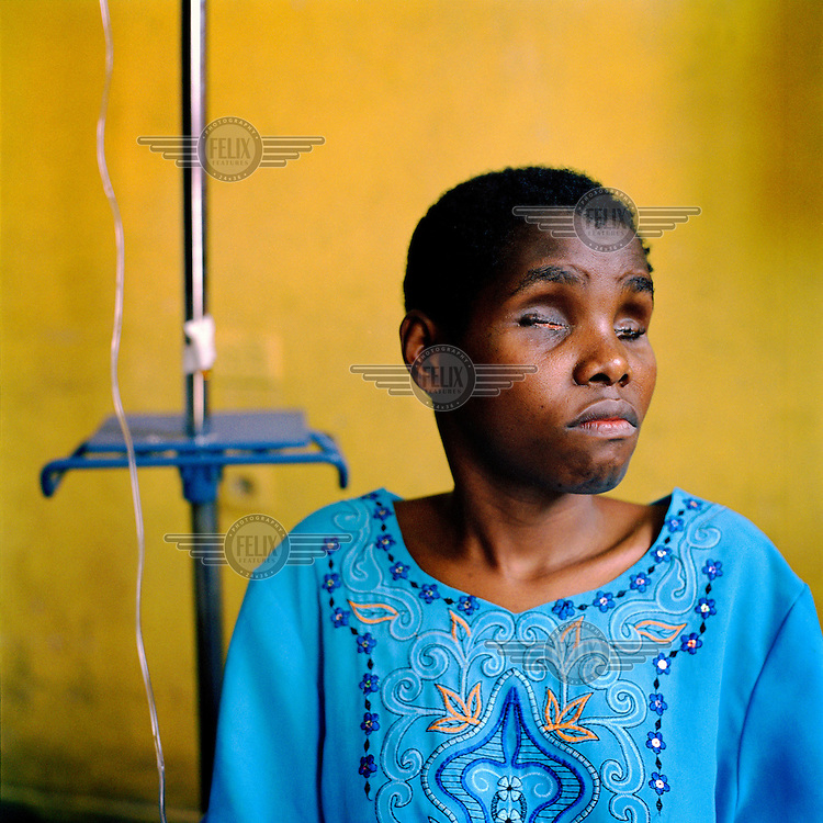22 year old Basemae Maombi made the 'mistake' of calling out the name of one of her rapists, whom she recognized during the attack. Her punishment was to have both her eyes gouged out. ©Robin Hammond/PANOS/Felix Features