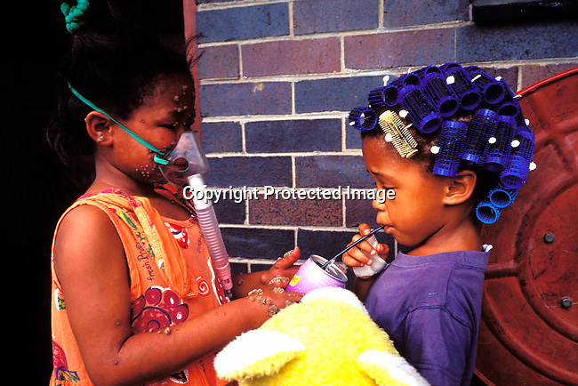 disiaids00461 Social Issues, Aids: Jady Graslund, age 9, offering a cold drink to an unidentified friend as she is using her oxygen mask outside her home on November 25, 2002 in Johannesburg, South Africa. She is living with HIV and takes antiretroviral drugs two times a day. She has asthma and needs to use the oxygen mask a few hours every day. She was born with HIV and also developed warts on her body, which are not treatable. She goes to a normal school and is fully accepted by the pupils and the teachers. Her mother died of an Aids related disease in 1996 and she is taken care of by an aunt. Judy visits about three hospitals a week for treatment. She is one of the fortunate South African's that receives Aids drugs. The country is struggling with one of the highest HIV-Aids infection rates in the world. .©Per-Anders Pettersson/iAfrika Photos...