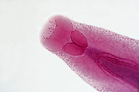 WORMS<br /> Clonorchis Sinensis, LM 40x mag<br /> Light micrograph of the oral end of a Chinese Liver Fluke, a parasitic flatworm.