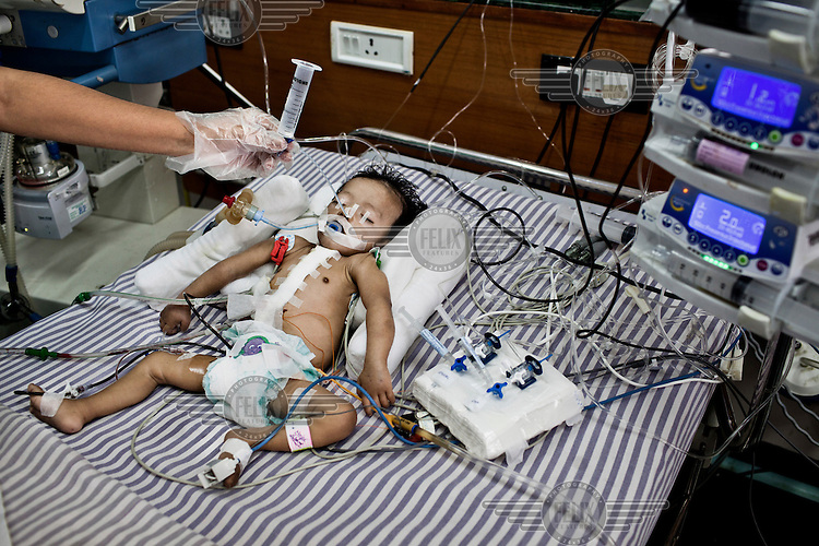 A nurse feeds six month old Kaushik via a nasal tube as the child recovers in the Intensive Therapy Unit of the Pediatric Section of the Narayana Hrudayalaya hospital. Kaushik underwent open heart surgery the previous day.