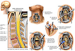 Spinal Fusion Surgery - C5-6 Disc Herniation with Anterior Cervical Discectomy (Diskectomy) and Fusion. Depicts the cervical (neck) spine with the herniated disc at the C5-6 level, resulting in severe neck pain. Surgical steps: 1. Incision in the front part of the neck; 2. Removal of herniated intervertebral disc material; 3. Drilling of vertebral end plates in preparation of the iliac bone graft; 4. Harvesting of iliac bone graft; and 5. Placement of  bone graft into the intervertebral space.