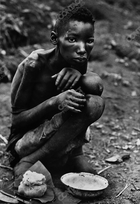 Sixteen-year-old Ibo boy, famine due to the civil war, Biafra, Nigeria, April 1968