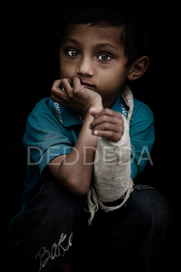 A young boy wears a cast on his arm at an orphanage in Pokhara, Nepal.