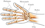 This medical exhibit illustrates a palmer view of the hand.  The ulna, radius, carpals, matacarpals, and phalanges are clearly labeled.