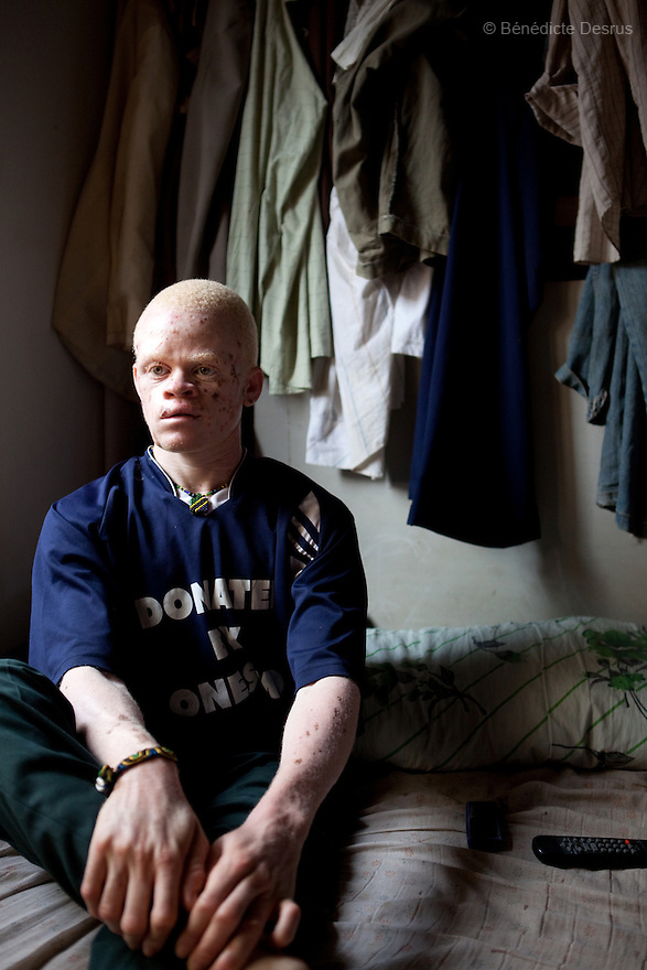10 june 2010 - Dar Es Salaam, Tanzania - Samuel Mluges son: Nixon Samuel Mluge, (22 yrs) on his bedroom. Nixon has badly damaged skin. As well as sun damage, his delicate skin is prone to infections and diseases if not taken care of. Samuel Herman Mluge (51yrs) an albino rights activist in Dar Es Salaam, Tanzania and his wife Teresa January (46 yrs) have five children, all with albinism. Albinism is a recessive gene but when two carriers of the gene have a child it has a one in four chance of getting albinism. Tanzania is believed to have Africa' s largest population of albinos, a genetic condition caused by a lack of melanin in the skin, eyes and hair and has an incidence seven times higher than elsewhere in the world. Over the last three years people with albinism have been threatened by an alarming increase in the criminal trade of Albino body parts.At least 53 albinos have been killed since 2007, some as young as six months old.Many more have been attacked with machetes and their limbs stolen while they are still alive. Witch doctors tell their clients that the body parts will bring them luck in love, life and business. The belief that albino body parts have magical powers has driven thousands of Africa's albinos into hiding, fearful of losing their lives and limbs to unscrupulous dealers who can make up to US$75,000 selling a complete dismembered set. The killings have now spread to neighbouring countries, like Kenya, Uganda and Burundi and an international market for albino body parts has been rumoured to reach as far as West Africa. Photo credit: Benedicte Desrus