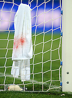 Blood is shown on the towel of Essam El Hadary of Egypt. El Hadary received a cut to the head during the melee in the lead up to the USA's  goal. USA defeated Egypt 3-0 during the FIFA Confederations Cup at Royal Bafokeng Stadium in Rustenberg, South Africa on June 21, 2009.