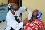 Dental care at Gisenyi District Hospital,.Northwest Rwanda....