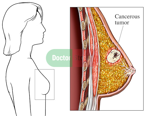 This full color medical illustration pictures a cancerous tumor within the female breast. The first graphic provides a line orientation to the female breast in a lateral (side) view. A separate enlarged image identifies and illustrates the tumor within the breast tissue. ..
