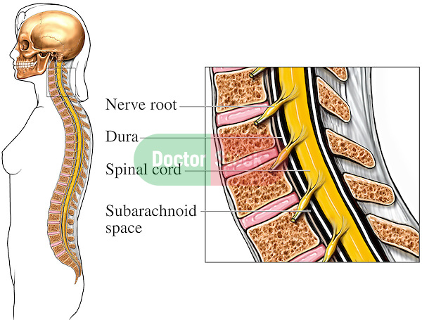 This medical exhibit pictures the bony and neural elements of the cervical spine from a mid-sagittal cut-away view. Labeled structures include the nerve root, dura, spinal cord and subarachnoid space.