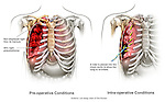 Rib Fracture and Pneumothorax Injury with Placement of a Chest Tube to Re-inflate the Lung.