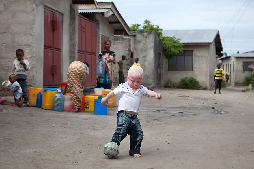 Dar es Salaam, Tanzania - Yusufu Sereman plays footbal in front of his house. Mwanahawa Yusufu is a 27 year old woman without albinism. She lives with her 2 year old albino son, Yusufu Sereman, in a 6 m2 rented room in Dar es Salaam. When she gave birth to Yusufu, her husband got very angry and left her saying that she had slept with a musungu, a white man. Since then, she has never heard from him. Mwanahawa survives as a single parent roasting and selling Cassava and other small food items. Her son Selemani already has badly damaged skin from exposure to the sun, but she cant get him treat because she has difficulties to pay for the treatments. Usually developing by a very young age a facial rash of dark melanomas is often the precursor of the skin cancer that kills so many albinos in early adulthood. Albinism is a recessive gene but when two carriers of the gene have a child it has a one in four chance of getting albinism. Tanzania is believed to have Africa' s largest population of albinos, a genetic condition caused by a lack of melanin in the skin, eyes and hair and has an incidence seven times higher than elsewhere in the world. Over the last three years people with albinism have been threatened by an alarming increase in the criminal trade of Albino body parts. At least 53 albinos have been killed since 2007, some as young as six months old. Many more have been attacked with machetes and their limbs stolen while they are still alive. Witch doctors tell their clients that the body parts will bring them luck in love, life and business. The belief that albino body parts have magical powers has driven thousands of Africa's albinos into hiding, fearful of losing their lives and limbs to unscrupulous dealers who can make up to US$75,000 selling a complete dismembered set. The killings have now spread to neighboring countries, like Kenya, Uganda and Burundi and an international market for albino body parts has been rumored to reach as far as West