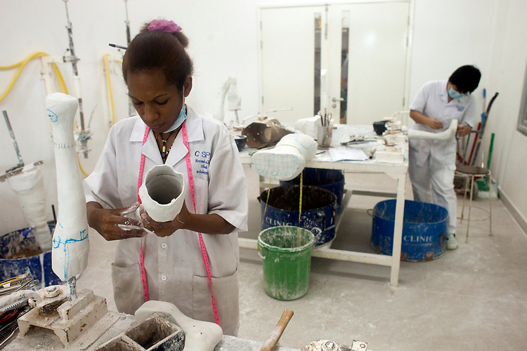 A young woman makes an artificial limb for victims of land mines at a hospital in Phnom Penh, Cambodia administered by the NGO Cambodia Trust. <br /> <br /> &copy; Dennis Drenner 2013