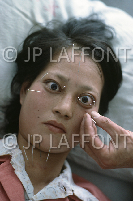 October 1984. Near Shanghai, traditional Chinesse acupuncture medicine.