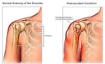 Right Shoulder Fracture with fractured humeral neck.