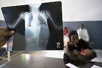Somaliland 2006 Health - Tuberculosis