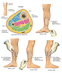Compartment Syndrome with Four Compartment Fasciotomy Procedure.