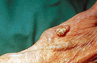 Skin cancer of the hand ( squamous cell carcinoma ). Carcinoma is a suffix meaning a malignant tumor composed of epithelial cells, with a tendency to metastasize. This image may only be used to portray the subject in a positive manner..©shoutpictures.com..john@shoutpictures.com