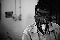 A patient suffering from XDRTB (Extreme Drug Resistant Tberculosis is undertaking respiratory treatment in seperate ward at the Rajan Babu TB hospital in New Delhi, India.