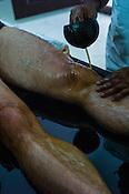 Resident guests get the ayurvedic treatment at the Nagarjuna Ayurvedic Centre in Kerala, India.