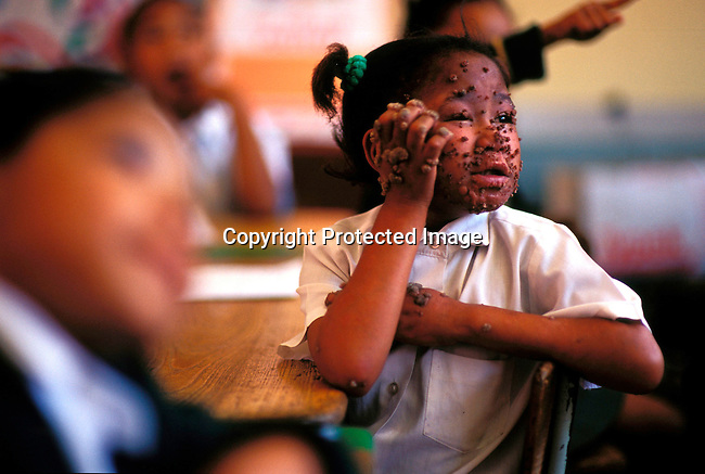 disiaids00449  Social Issues, Aids: Jady Graslund, age 9, listening to her teacher during a math class on November 27, 2002 at Newclare primary school west of Johannesburg, South Africa. Jady is living with HIV and takes drugs two times a day. She early developed warts on many parts of her body and she has learned how to live wit them, as they will never disappear totally. She goes to a normal school and is fully accepted by the pupils and the teachers. Her mother died of an Aids related disease in 1996 and she is taken care of by an aunt. Judy visits about three hospitals a week for treatment. She is one of the fortunate South African's that receives Aids drugs. The country is struggling with one of the highest HIV-Aids infection rates in the world. .©Per-Anders Pettersson/ iAfrika Photos...